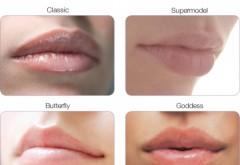 OFERTA PLOIESTI: DISCOUNT 10% la injectarea buzelor sau ridurilor cu Acid Hialuronic JUVEDERM, daca arati medicului poza ASTA