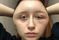 O tânără a fost la un pas de moarte după ce și-a vopsit părul. Ce a pățit în scurt timp. VIDEO