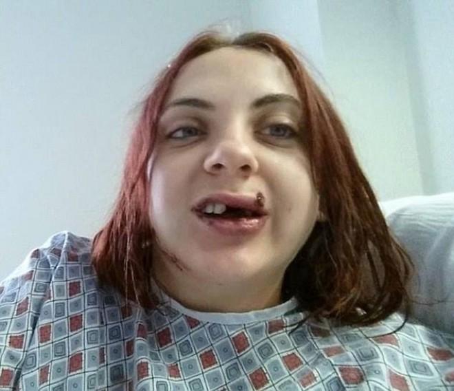 """Cum a ajuns tanara de 21 de ani in aceasta stare la spital. """"Eram atat de speriata ca nu puteam nici sa tip"""""""