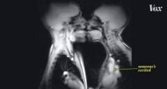 VIDEO! Iată cum arată o partidă de amor suprinsă la RMN, în scop științific!