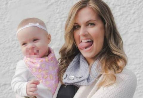 S-a nascut cu o boala rara, din cauza careia are limba prea mare si nu ii intra in gura. Cum arata micuta, inainte de operatie
