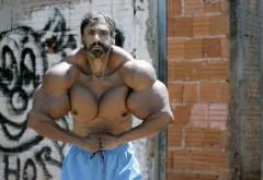 Își riscă viața ca să arate ca Hulk. Își injectează ulei în brațe