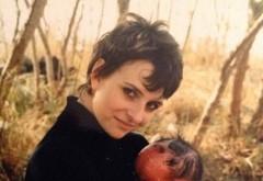 Fetita asta s-a nascut cu o boala de piele crunta! Cum arata astazi. Medicii au crezut ca e arsa, dar de fapt...! Imagini incredibile
