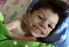 A fost lasat sa moara de foame timp de 7 ani :'( Dragostea parintilor adoptivi a facut minuni