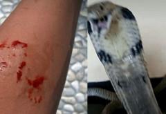 Ce nebunie! Un tanar a fost muscat de propria cobra insa in loc sa sune la salvare si-a postat imaginile pe Facebook