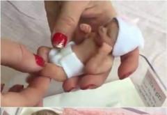 Cel mai mic bebelus din lume iti topeste inima