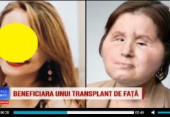 Cel mai tânăr pacient care a primit un transplant de față. A vrut să se sinucidă. Acum arata superb