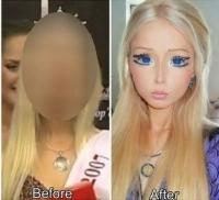 Poza asta te va şoca! Uite cum arăta femeia Barbie înainte să-şi facă intervenţiile chirurgicale!