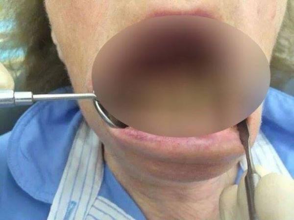 FOTO! Femeia care nu s-a spălat NICIODATĂ pe dinți. Stomatologii au ramas MUTI!