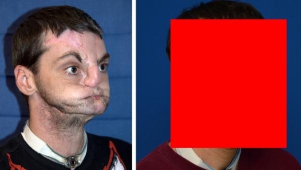 Şi-a pierdut nasul, buzele şi dinţii după ce a fost ÎMPUŞCAT în FAŢĂ, dar este model în reviste după operaţie