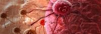 Incidenţa cazurilor de cancer în România - cea mai mică din Europa. Mortalitatea - cea mai mare