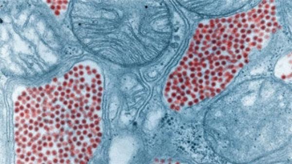 VIRUS NOU, descoperit de oamenii de ştiinţă. Jumătate din populaţia globului îl are