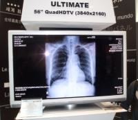 Afla cand vei putea face radiografii FULL DIGITAL, la Spitalul Judetean