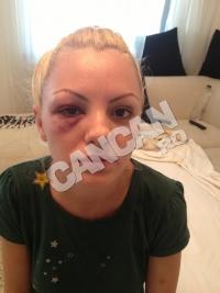 """Alexandra Stan, SNOPITA IN BATAIE: """"NU am avut niciun accident, managerul meu m-a bagat IN SPITAL!"""""""