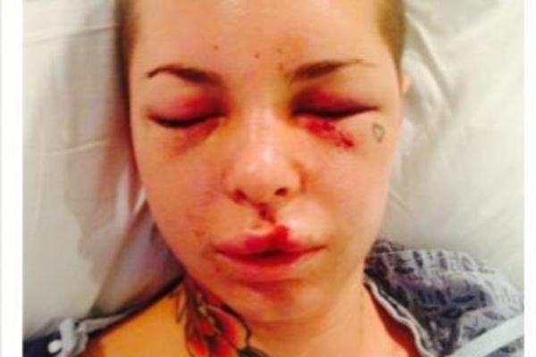 Dupa ce a fost batuta crunt, starleta porno Christy si-a mai revenit. Cum arata acum. FOTO