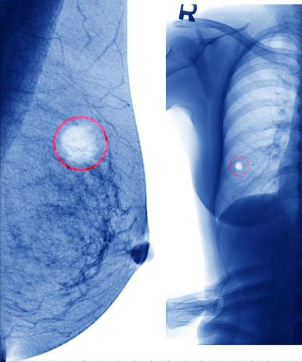 Care sunt semnele că ai cancer la sân. Orice femeie trebuie să le știe! Vezi aici