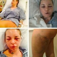 Imagini terifiante cu starleta porno care a fost snopită în bătaie de fostul ei iubit! Chipul şi trupul divei XXX sunt un DEZASTRU!