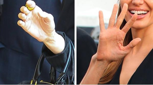 Angelina e ca un schelet din cauza cancerului la ovare!  FOTO ȘOCANT
