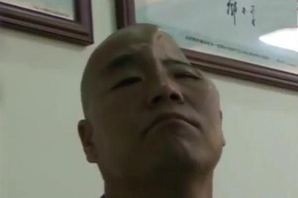 Aproape jumătate din craniul unui bărbat, refăcut cu ajutorul unei imprimante 3D