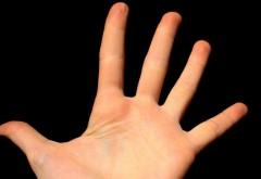 Ce înseamnă când te mănâncă palma dreaptă sau ambele palme