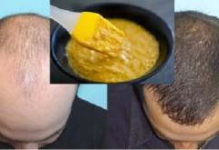 Până şi medicii sunt impresionaţi: remediul BIZAR care accelerează creşterea părului
