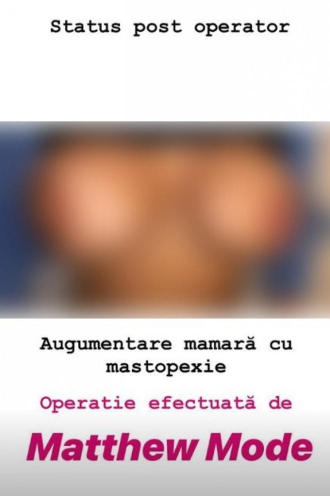 A apărut prima pacientă mutilată de chirurgul estetician fals