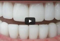 VIDEO! Albeşte-ţi dinţii în mod natural în doar trei minute!