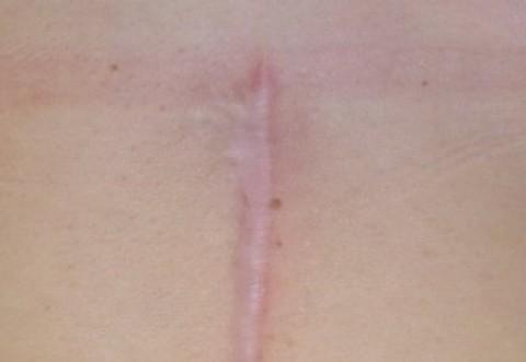 Cel mai bun cicatrizant natural – vindecă frumos semnele lăsate de acnee, tăietura de la cezariană, rănile, arsurile, zgârieturile, tăieturile