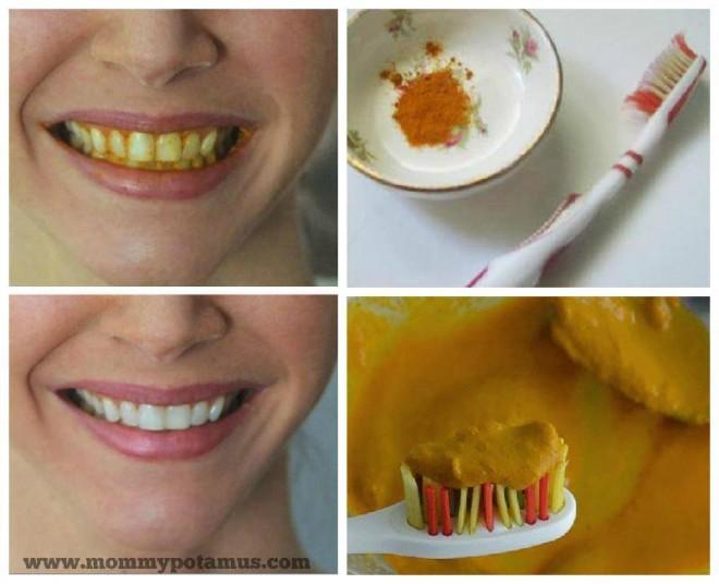 Cum îţi albeşti dinţii pe loc cu un condiment pe care îl ai în casă