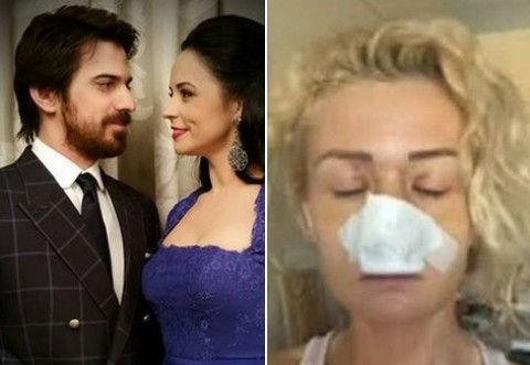 IMAGINI TULBURĂTOARE! Blonda lui Tuncay Öztürk, bătută, desfigurată şi lăsată într-o baltă de sânge