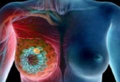 Bem asta zilnic, dar nu stim ca acest lucru cauzeaza CANCER MAMAR! Studiile cercetatorilor te pun pe ganduri