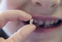 De ce NU trebuie aruncaţi dinţii de lapte. Sănătatea copiilor poate depinde de ei