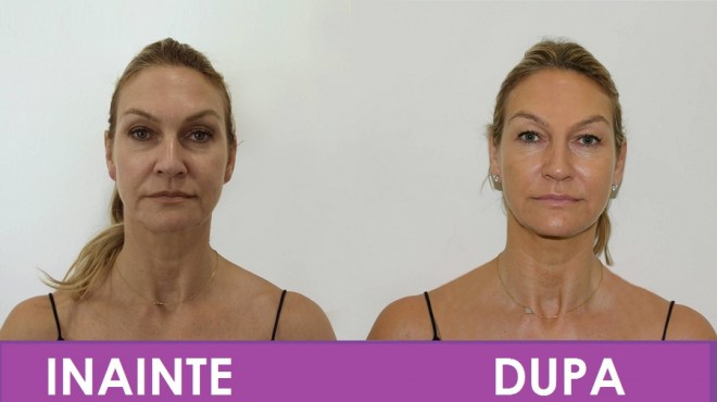 Lifting fara operatie, cea mai cautata procedura cosmetica, acum si in PLOIESTI. Vezi cum poti arata cu 10 ani mai tanara, fara durere si fara bisturiu