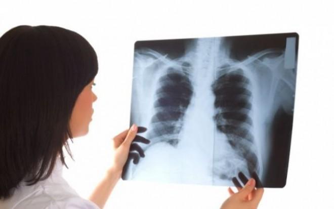 75 la sută din totalul cazurilor de cancer pulmonar sunt diagnosticate în stadiu inoperabil