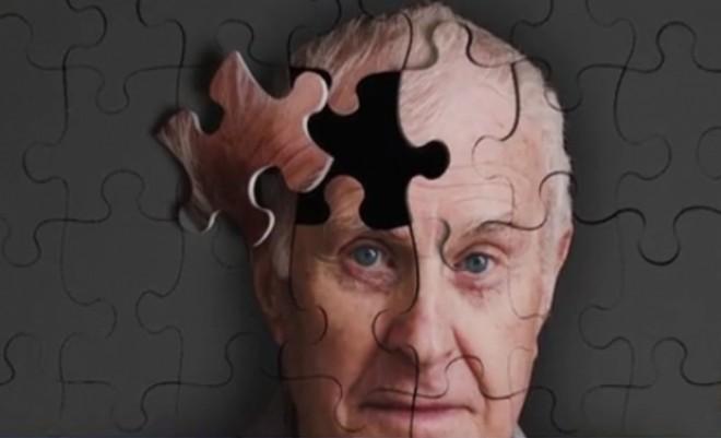 S-a descoperit o cale de vindecare a Alzheimerului