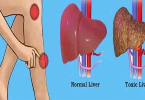 Semne de avertizare ca ficatul este plin de toxine care duc la cresterea in greutate