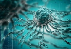 Un medic atenționează: CANCERUL e cauzat de zahăr și aditivii din mezeluri