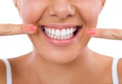 Cum scapi RAPID de tartru de pe dinți fără să mergi la dentist
