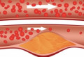 Ai o circulaţie proastă a sângelui? Iată cele mai bune remedii de vindecare