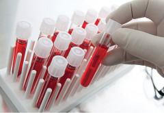 O echipă internaţională de oameni de ştiinţă a dezvoltat o metodă nouă de detecţie a cancerului hepatic
