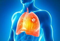Studiu revoluţionar al specialiştilor: Vitamina-minune care te scapă de cancerul pulmonar