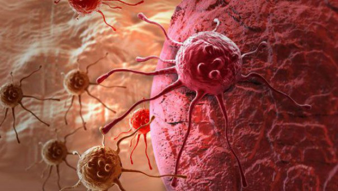 Un MEDIC neurolog celebru AVERTIZEAZĂ! Așa APARE CANCERUL. Care sunt gândurile care ne ÎMBOLNĂVESC