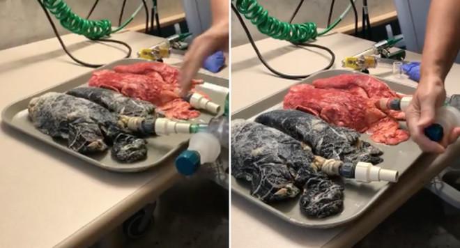 Așa arată plămânii unei persoane care a fumat timp de 20 de ani – Ce zici, renunți la țigări?