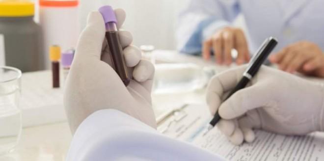 Eşti născut înainte de 1990? Mergi la doctor şi cere-i DE URGENŢĂ să îţi facă aceste analize!