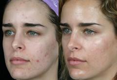 Terapia albastră, un nou tratament revoluţionar pentru acnee