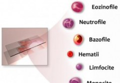 Dr. Radu Craciun: Cum interpretam corect HEMOGRAMA. Partea II - Leucocitele