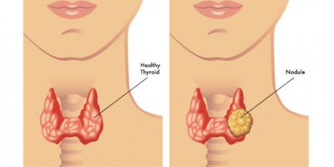 Cine prezintă cel mai mare risc de a dezvolta noduli tiroidieni