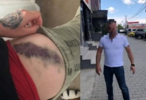 """SCENE ȘOCANTE Celebra vloggeriţă Bianca Adam """"Tequila"""" a fost BĂTUTĂ, pe stradă, de un afacerist: Nimeni NU a intervenit"""