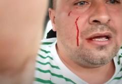 """Activist din Buzău, bătut de față cu doi polițiști: """"Dădeau cu pumnii, cu pietrele. Poliția nu mă proteja cu nimic"""""""