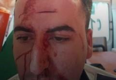 SCANDAL în trafic: Un polițist a fost bătut de un șofer pe care încerca să-l imobilizeze - FOTO